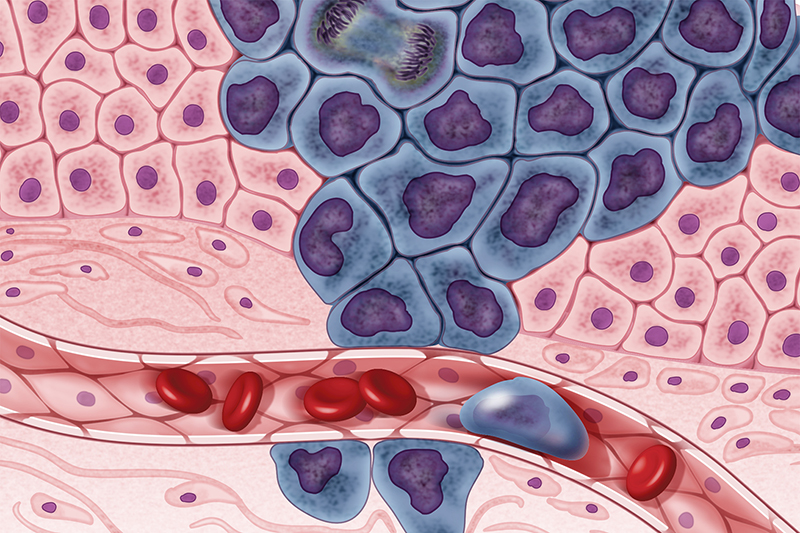Breakthrough made in understanding drug resistance to Breast