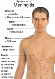 health-centre-meningitis